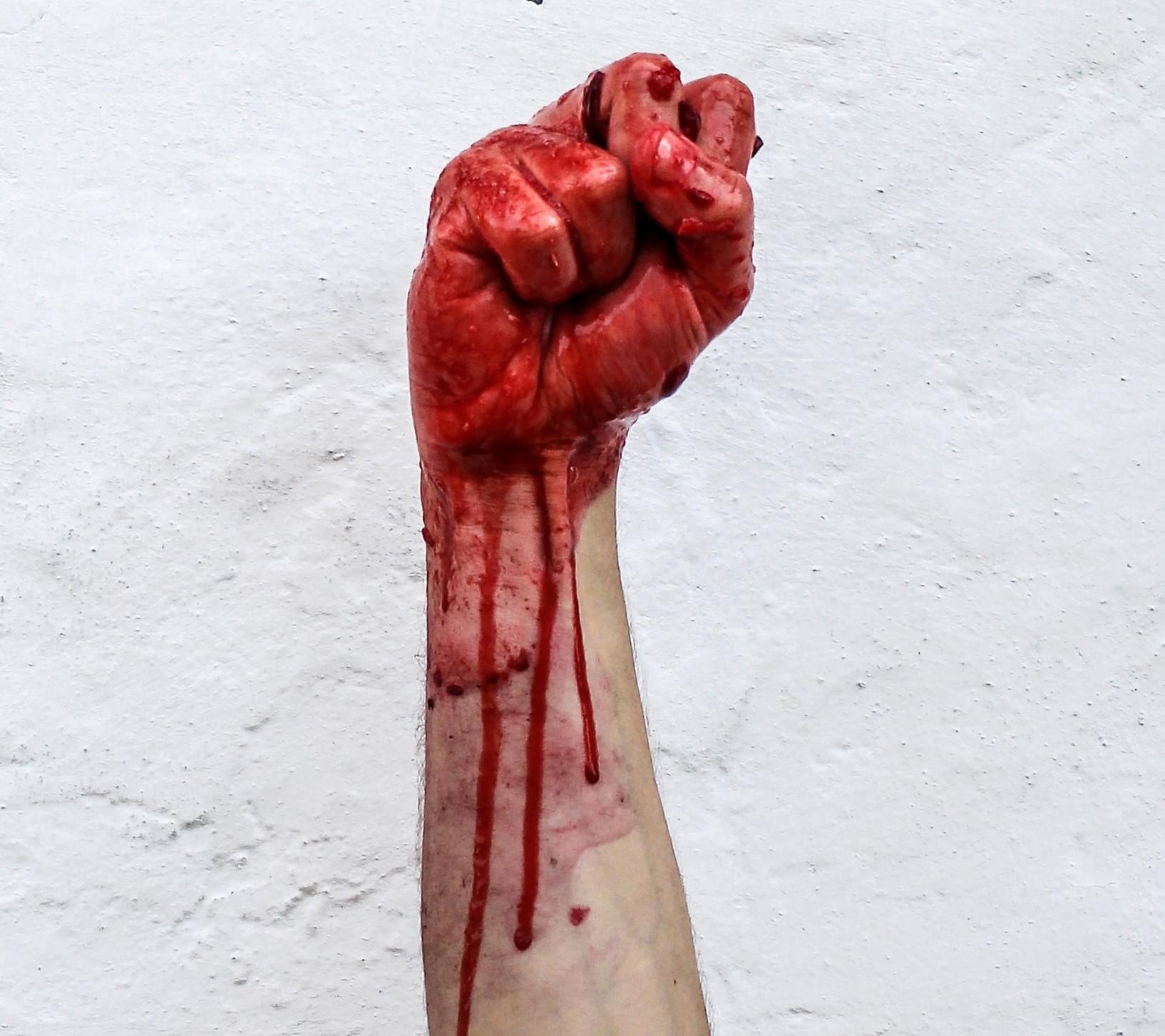 eine blutige Faust vor einer weißen Wand